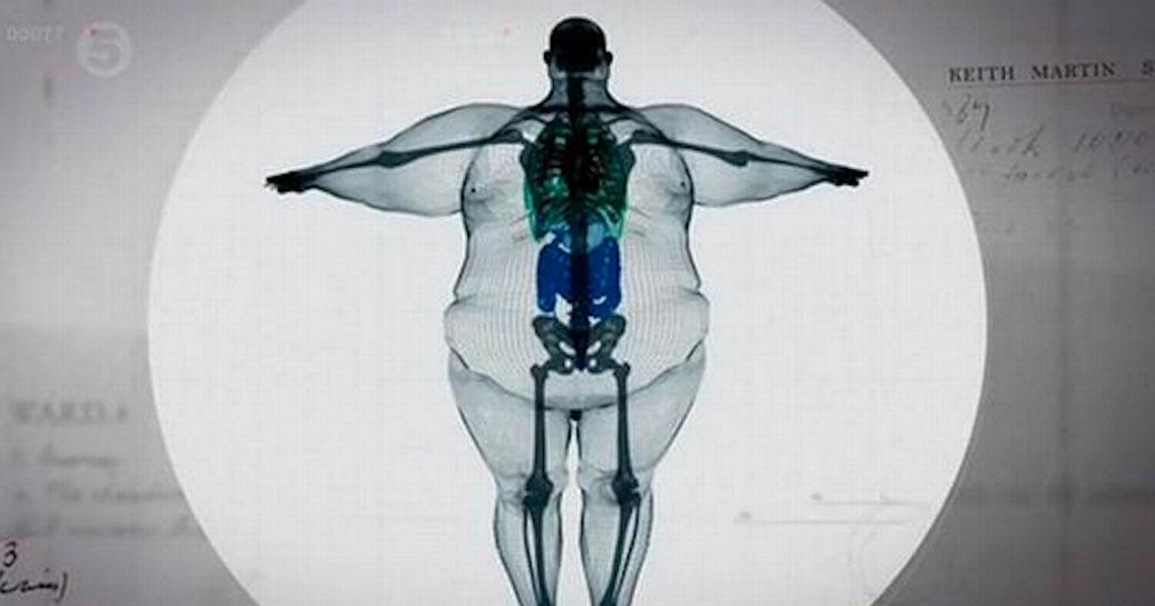 Visceral Fat TOFI Skinny Fat