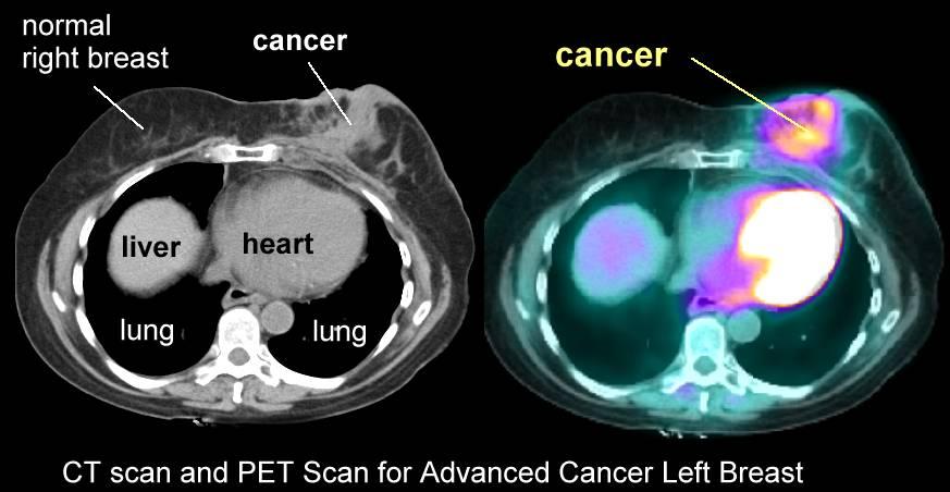 PET Scan | CANCER INSULEAN